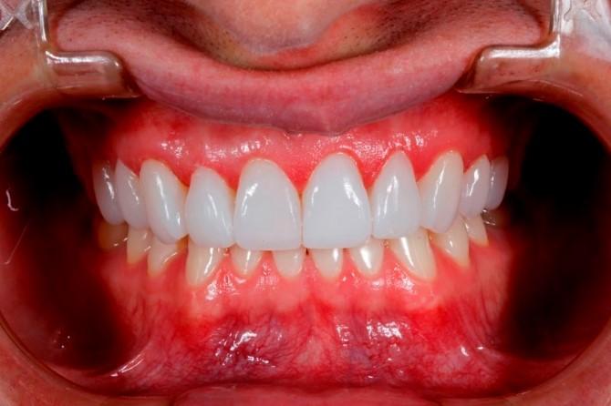 lentes-de-contato-dentais