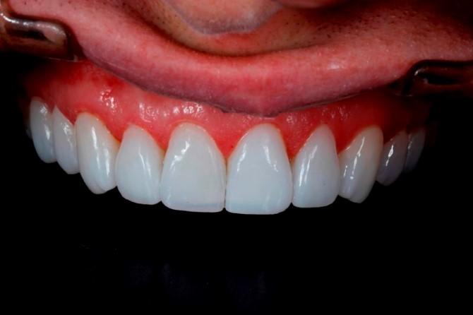 lentes-de-contato-dentarias
